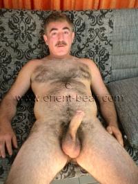 very hairy body
